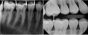 Dental x-rays bitewings