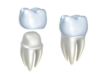 Dental-crown1