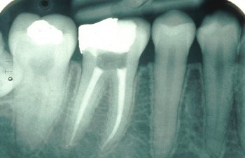 Endo treated tooth