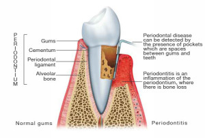 periodontitis_illustration