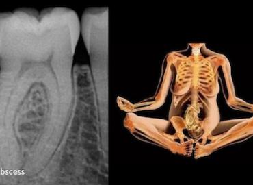 X-rays in pregnancy